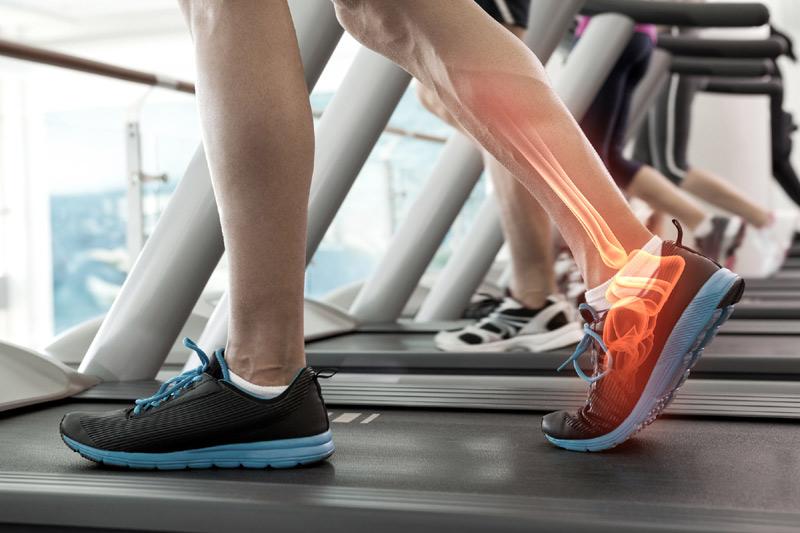 Treadmill injury